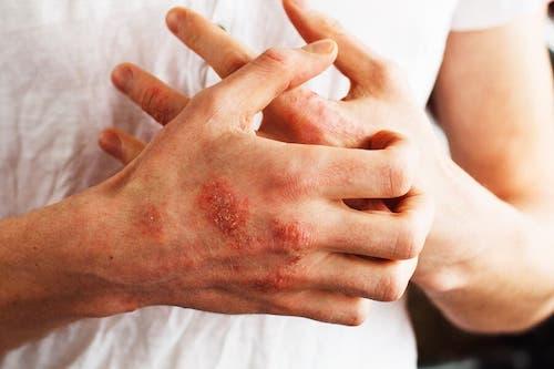 Mężczyzna z chorobą skórną