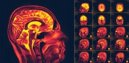 Czym jest neuroplastyczność mózgu?
