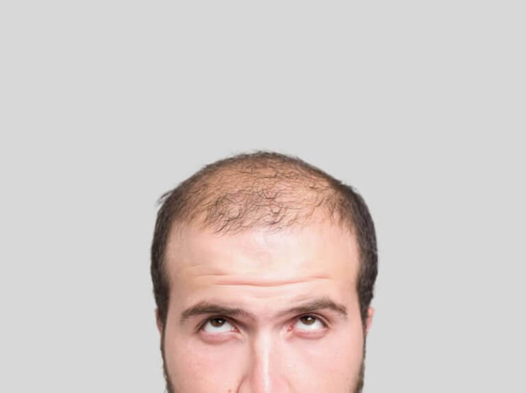 Trzy naturalne sposoby na łysienie plackowate