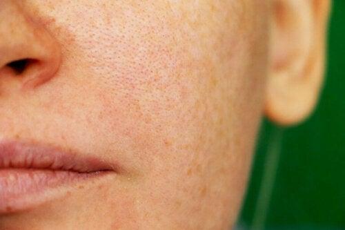 Melasma - naturalne sposoby na ciemne plamki na skórze