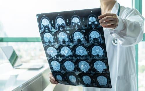 Neurologia i obraz mózgu