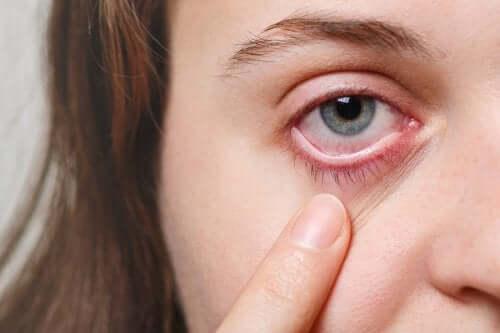 Zaczerwienienie oczu