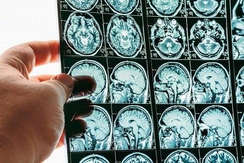 Wgłobienie mózgu: na czym polega to schorzenie?