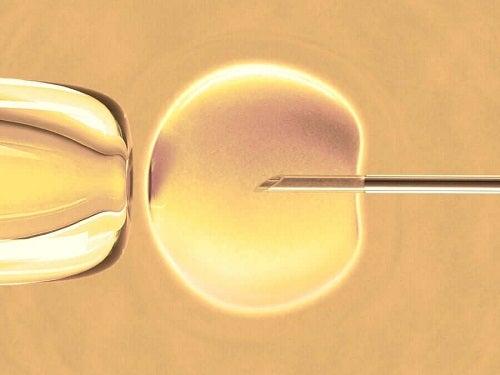 Zapłodnienie in vitro: czy wiesz na czym polega?