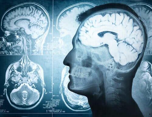 Zdjęcia mózgu