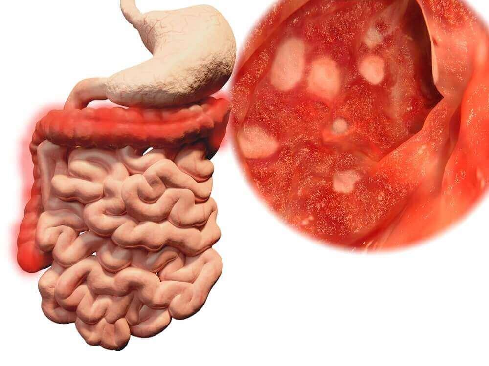 Na podłodze znajdują się potencjalnie niebezpieczne bakterie. Zjedzenie czegoś, co upadło, może doprowadzić do problemów żołądkowych.