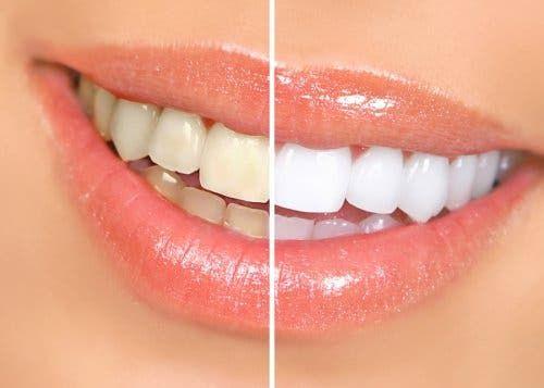 Bielsze zęby