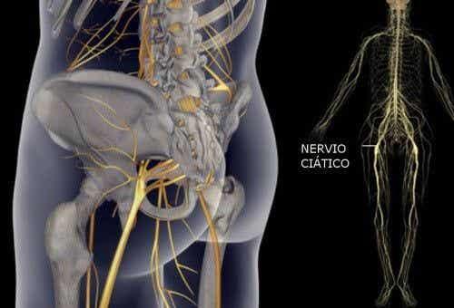 Proste ćwiczenia fizyczne na złagodzenie bólu nerwu kulszowego