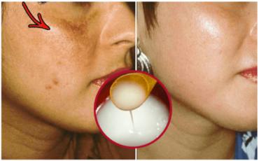 Domowej roboty krem do rozjaśniania skóry