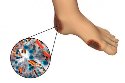 Gangrena stopy - rodzaje gangreny