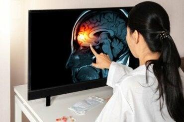 Opony mózgowo-rdzeniowe: czym one są?
