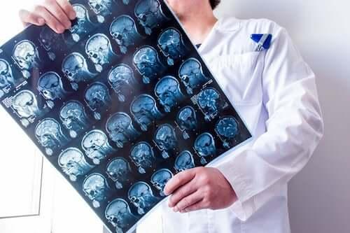 Lekarz z wynikami badań mózgu