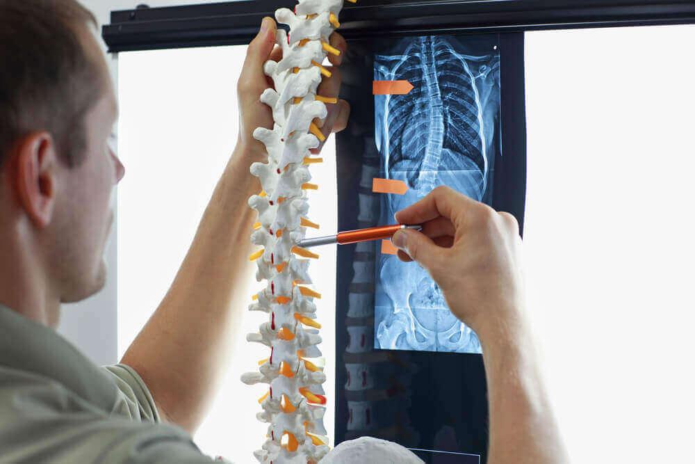 Skolioza u dzieci to skrzywienie kręgosłupa powodujące jego wygięcie w kształt litery C lub S.