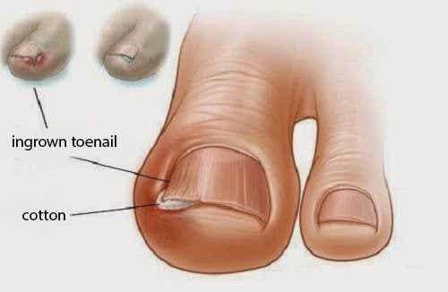 Jak przycinać paznokcie i zapobiegać ich wrastaniu?