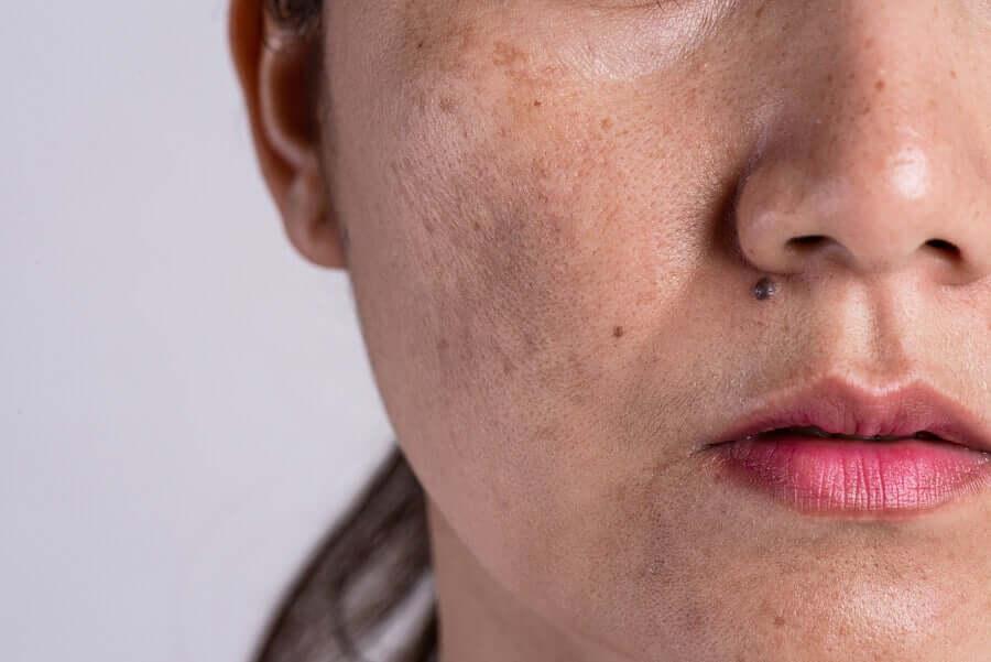 W ciąży należy chronić skórę przed słońcem, by uniknąć przebarwień.