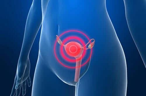 Rak endometrium - leczenie po jego rozpoznaniu