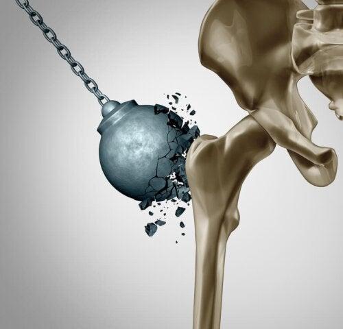 Gęstość kości - jak ją zachować po menopauzie?