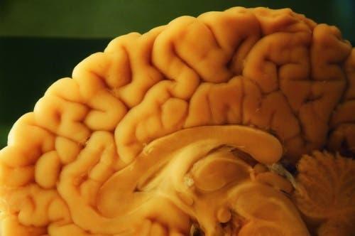 Autopsja mózgu - technika autopsji neuropatologicznej