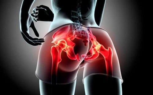 Kobieta cierpiąca na zapalenie mięśnia pośladkowego