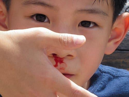 Krew lecąca z nosa chłopca