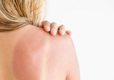 Rumień słoneczny: zalecenia i pielęgnacja