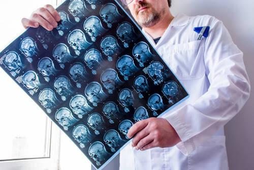 Rentgen mózgu