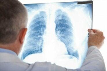 Nietypowe zapalenie płuc - co to za choroba?