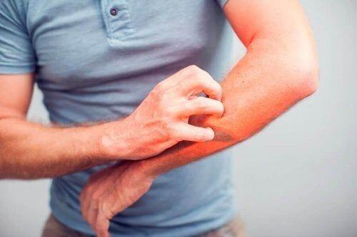 5 naturalnych środków łagodzących swędzenie