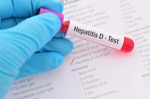 Test na wirusowe zapalenie wątroby typu D