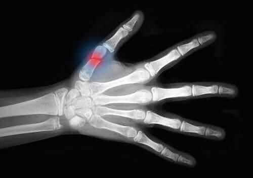 Złamanie palca