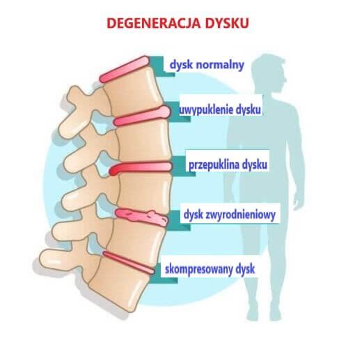 Choroba zwyrodnieniowa dysku - objawy