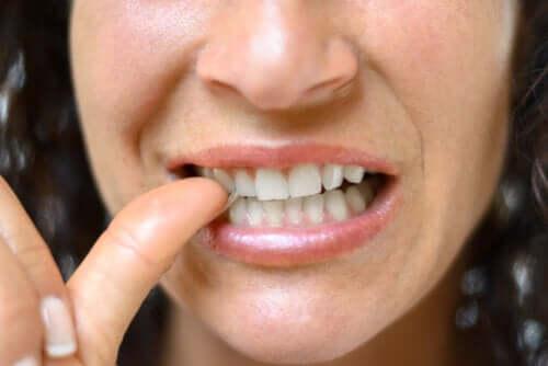 Zanokcica - charakterystyka i leczenie