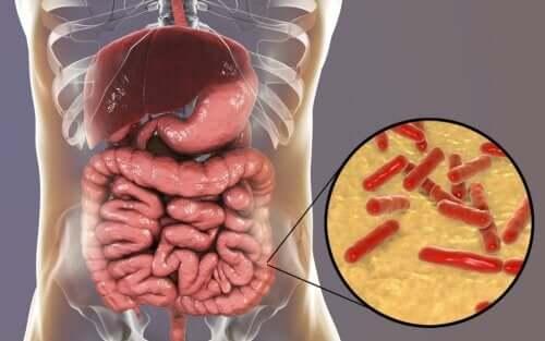 Zaburzona flora bakteryjna jelit - objawy