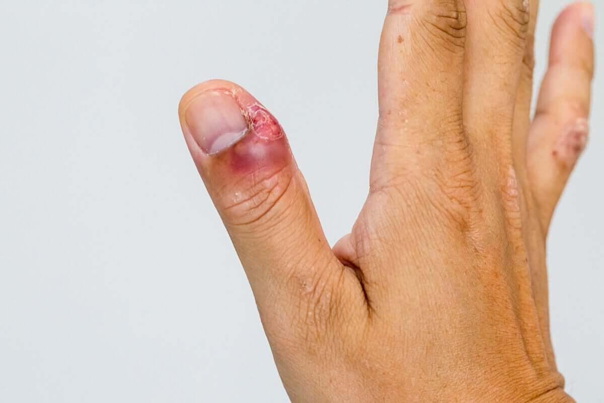 Infekcję wokół paznokci mogą powodować bakterie lub grzyby. Jej natężenie bywa różne.