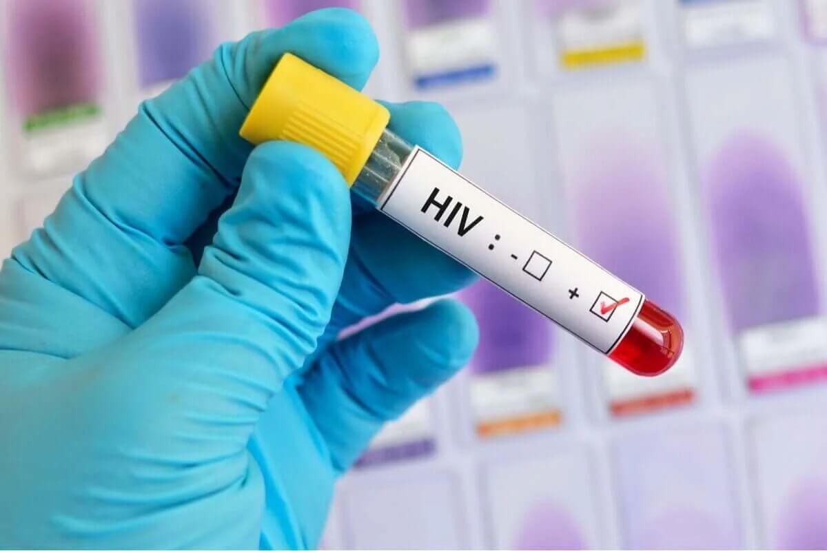 Przenoszenie wirusa hiv