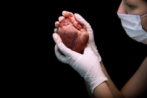 Na czym polega przeszczep serca i jakie są jego etapy?