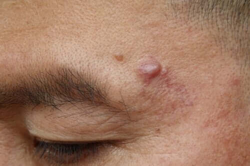 Torbiel naskórkowa - przyczyny i leczenie