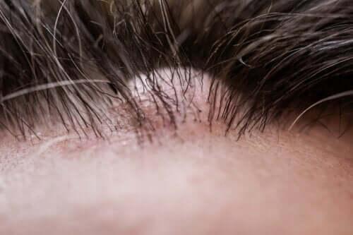 Włókniak skórny - co to jest i dlaczego się pojawia?
