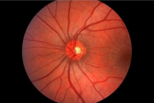 Ciśnienie w oku