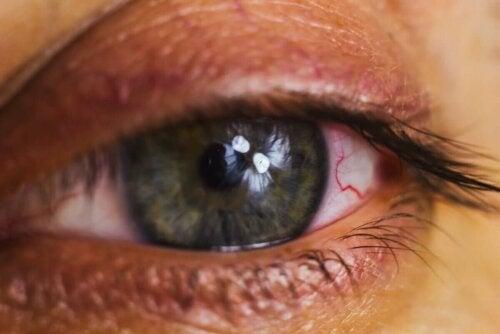Podrażnione oczy