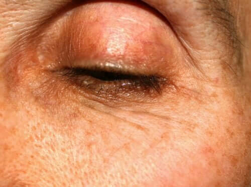Przebarwienia na powiekach: dlaczego powstają?