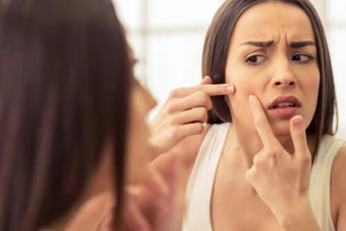 Dotykanie twarzy i wyciskanie zaskórników prowadzi do przenoszenia bakterii i powoduje zapalenia.