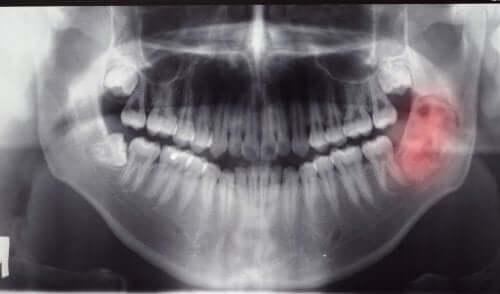 Guzy i cysty w jamie ustnej: diagnostyka