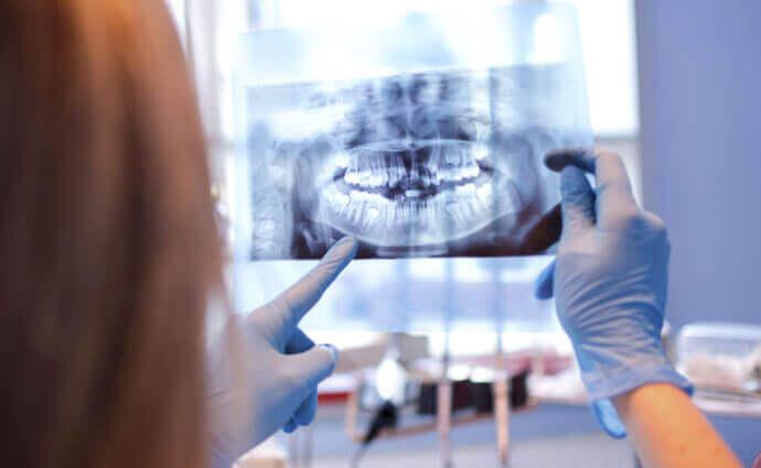 Badanie rentgenowskie