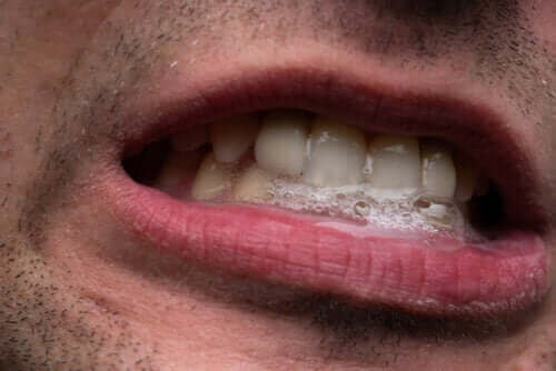 Ślinotok - sposoby leczenia tego zjawiska