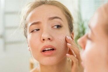 Odwodniona skóra - jakie są jej przyczyny?