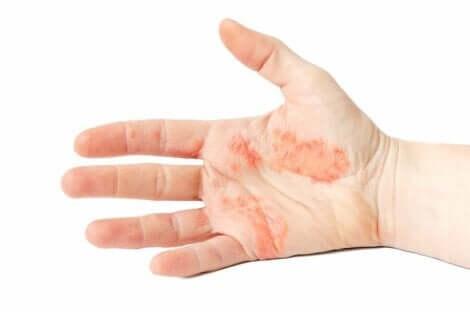 Wyprysk potnicowy na dłoni