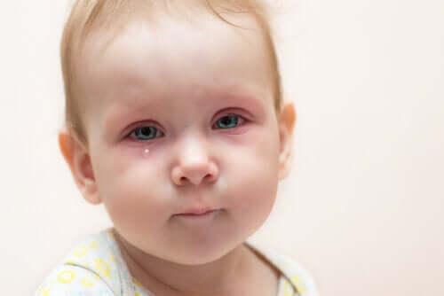 Zapalenie spojówek u dzieci - jak postępować?