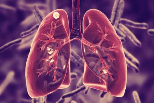 Gruźlica płuc – czym jest i jakie są jej objawy?