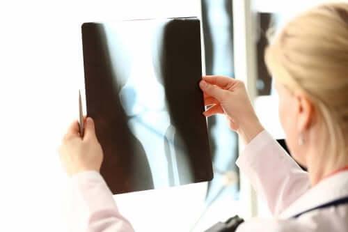 Produkty z wapniem i witaminą D: zadbaj o zdrowe kości!